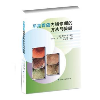 早期胃癌内镜诊断的方法与策略